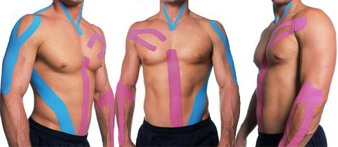 Kinesio-Taping.-Mejorando-la-inflamación-y-el-dolor-muscular